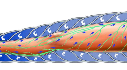 Effect compressie pomp voor behandeling lymfoedeem